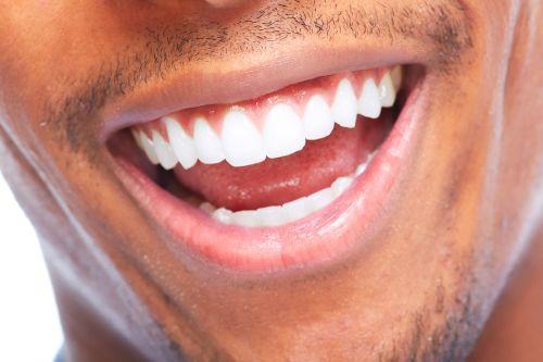 Laser Teeth Whitening Lexington MA