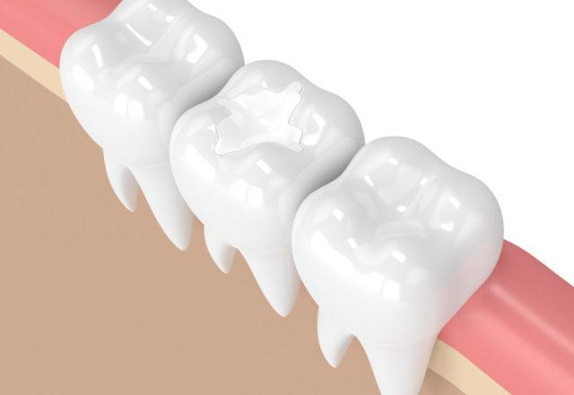 dental fillings | composite dental fillings Lexington MA