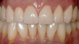 porcelain dental crowns Lexington MA