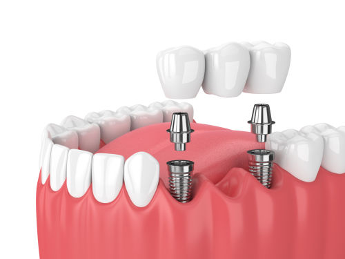 dental bridges Lexington MA | dental bridge Lexington MA