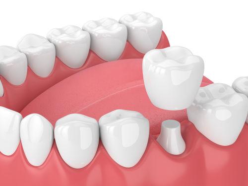 dental crowns Lexington MA | dental crown Lexington MA