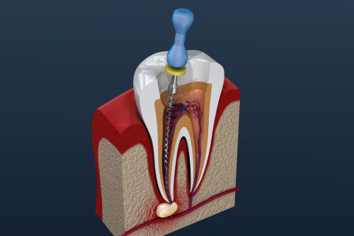 Root Canal Treatment Lexington MA | Endodontist Lexington MA