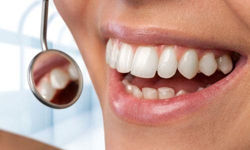 FAQS - Dental Treatments Lexington MA | dental office Lexington MA