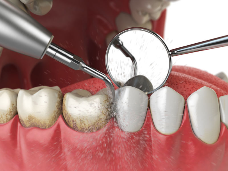 Tartar removed during a dental cleaning | Lexington dentists