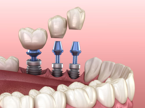 Dentist in lexington | dental implants