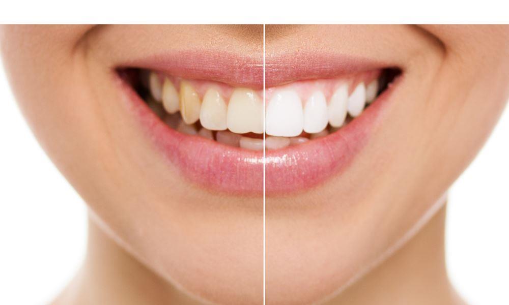 Lexington Dentists | Patient after teeth whitening procedure.